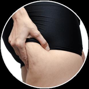 Cellulit tłuszczowy na udach