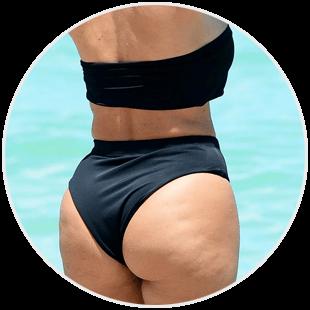 Cellulit tłuszczhowy na pupie