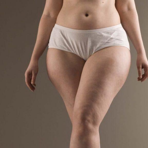 Cellulit na ciele